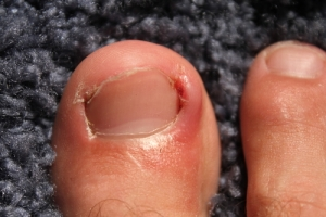 infected ingrown toenail